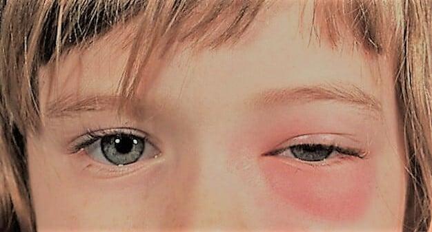 Флегмона глазницы