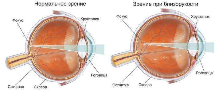 Миопия и нормально зрение