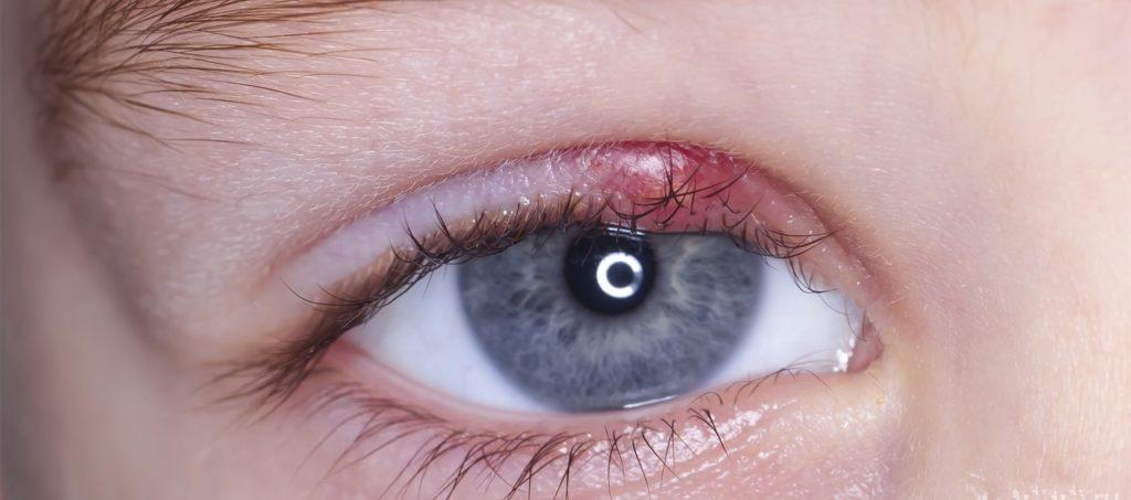 Что такое ячмень на глазу: причины появления, методы лечения