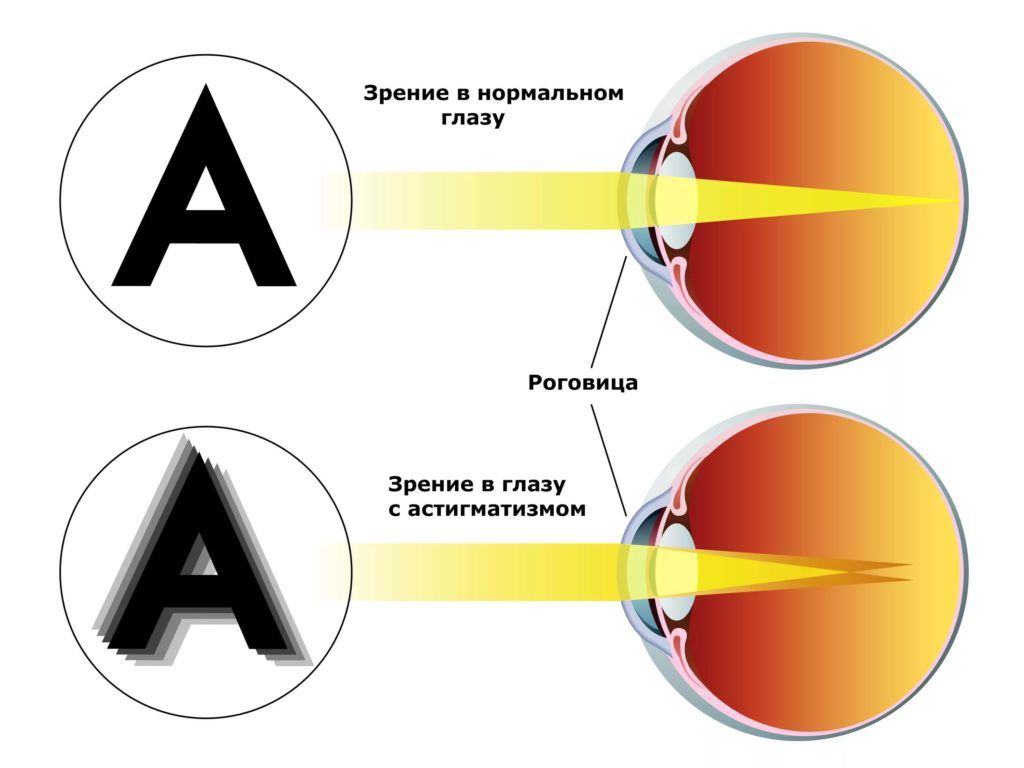Как выглядит астигматизм
