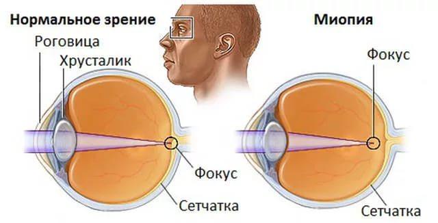 Миопия глаз