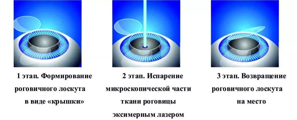 Лазерная коррекция зрения в спб клиника федорова