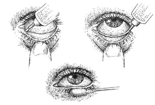 Как наносить глазную мазь