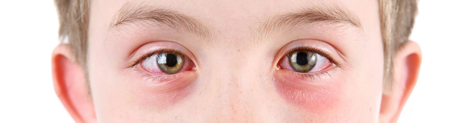 Воспаление обоих органов зрения