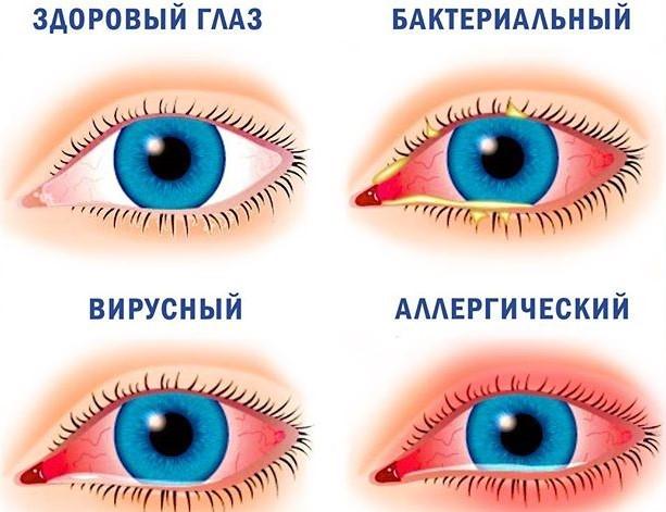 Виды заьолевания глаза