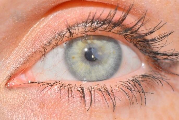 Отек роговицы глаза