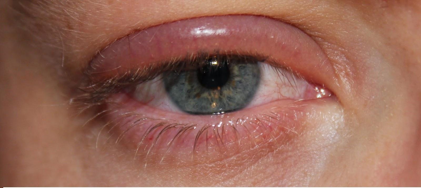 Как выглядит ячмень на больном глазу