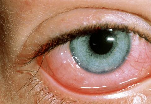Заболевание роговой оболочки глаза