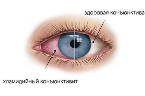 Симптоматика хламидийного конъюнктивита