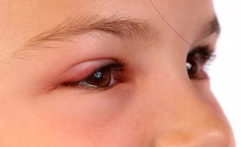Появление ячменя на глазу
