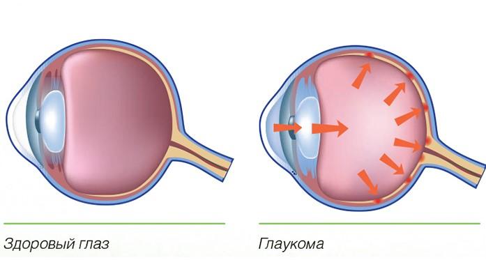 Глаукома на глазу