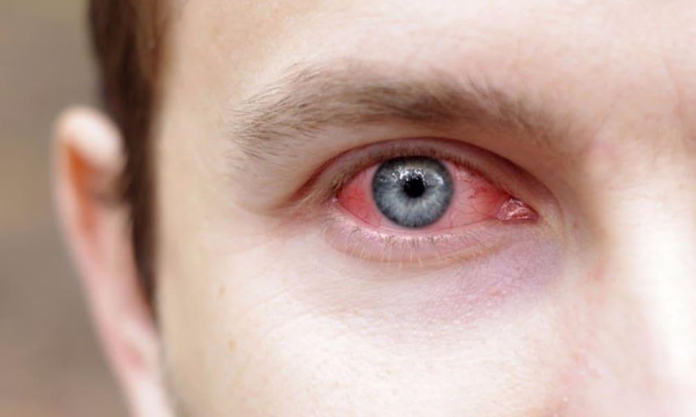 Острый конъюнктивит - лечение болезни. Симптомы и профилактика заболевания Острый конъюнктивит