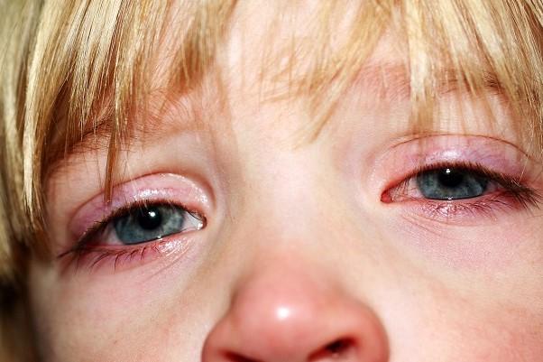 Лечение глаз у ребенка