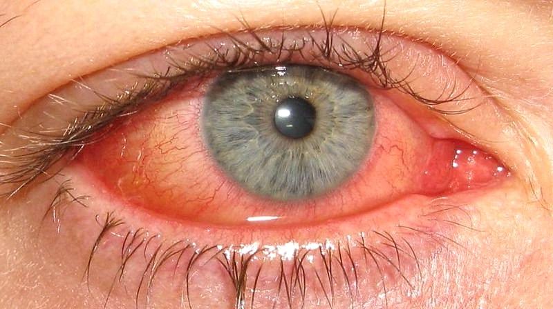 Острое воспаление органов зрения