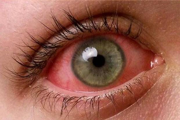 Признаки воспаления глаза