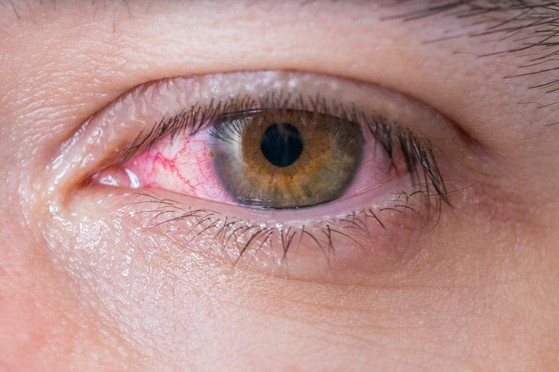 Воспаление оболочки глаза