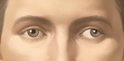 Косоглазие глаз