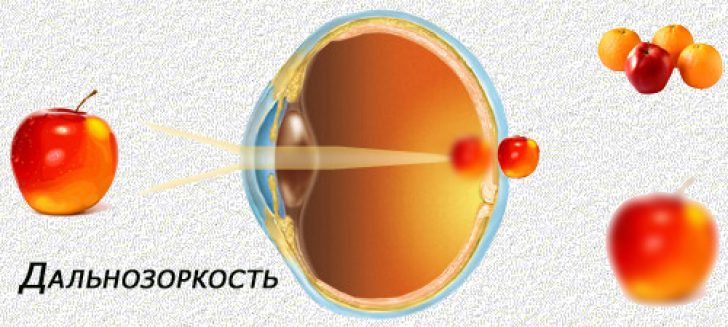 Дальнозоркость глаз
