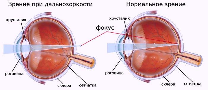 Дальнозоркость органов зрения