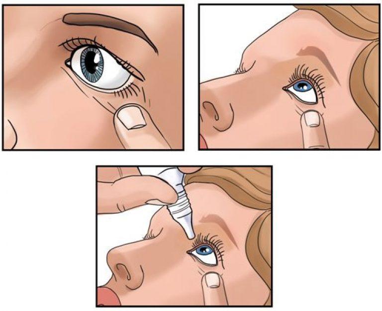 Как правильно капать глаза