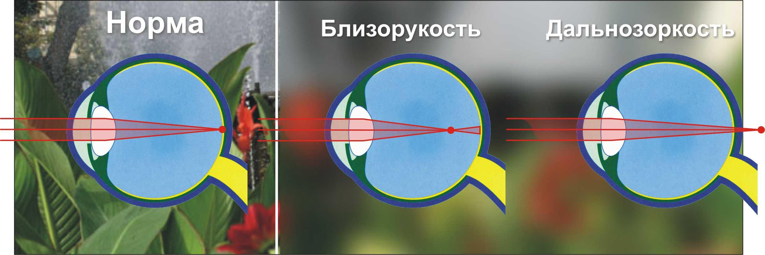 Как выглядит патология глаза