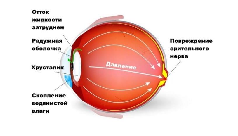 Глаукома в глазу