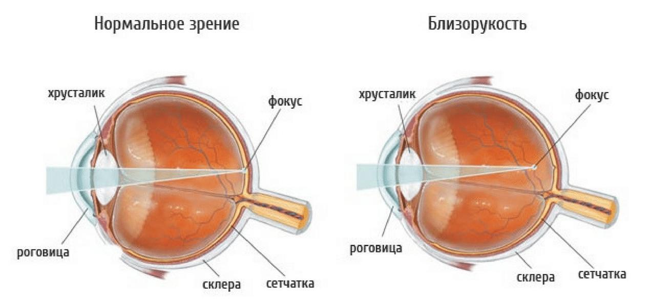 Как выглядит миопия глаз