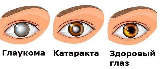 Признаки заболевания зрения
