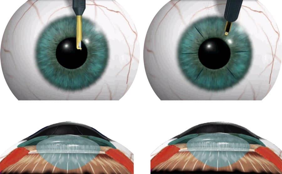 Лечение заболевания зрения