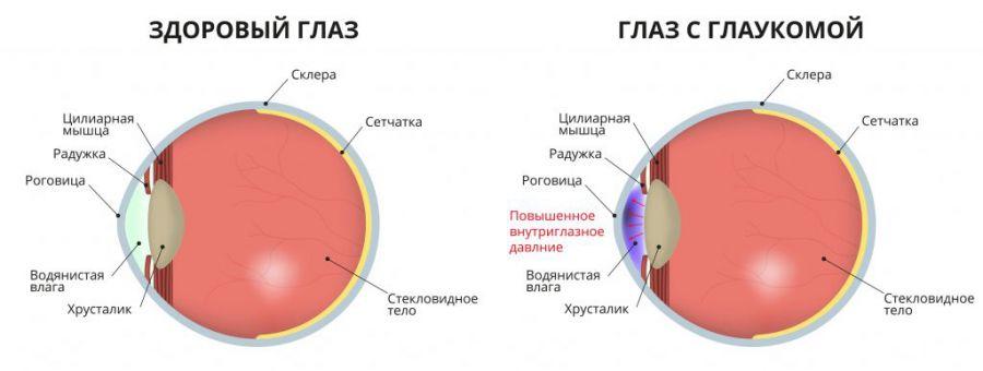Как выглядит глакома