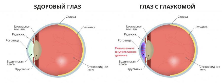 Заболевание глаз