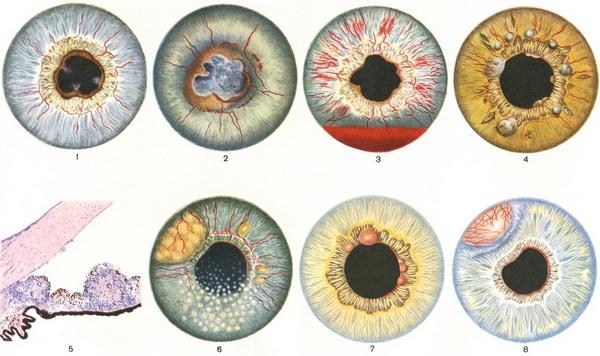 Воспаление радужки глаза
