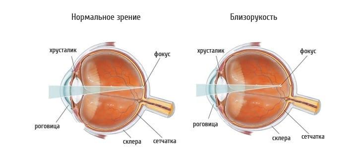 Как видит человек с близорукостью