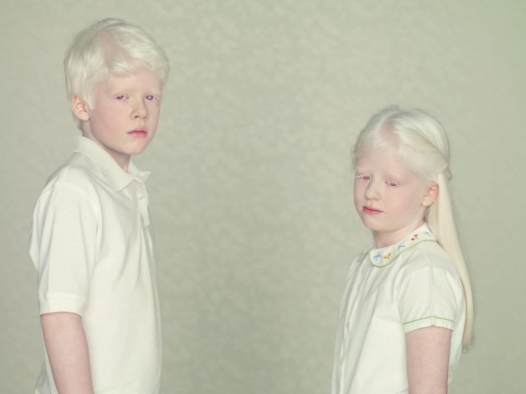 Альбиносы в обществе