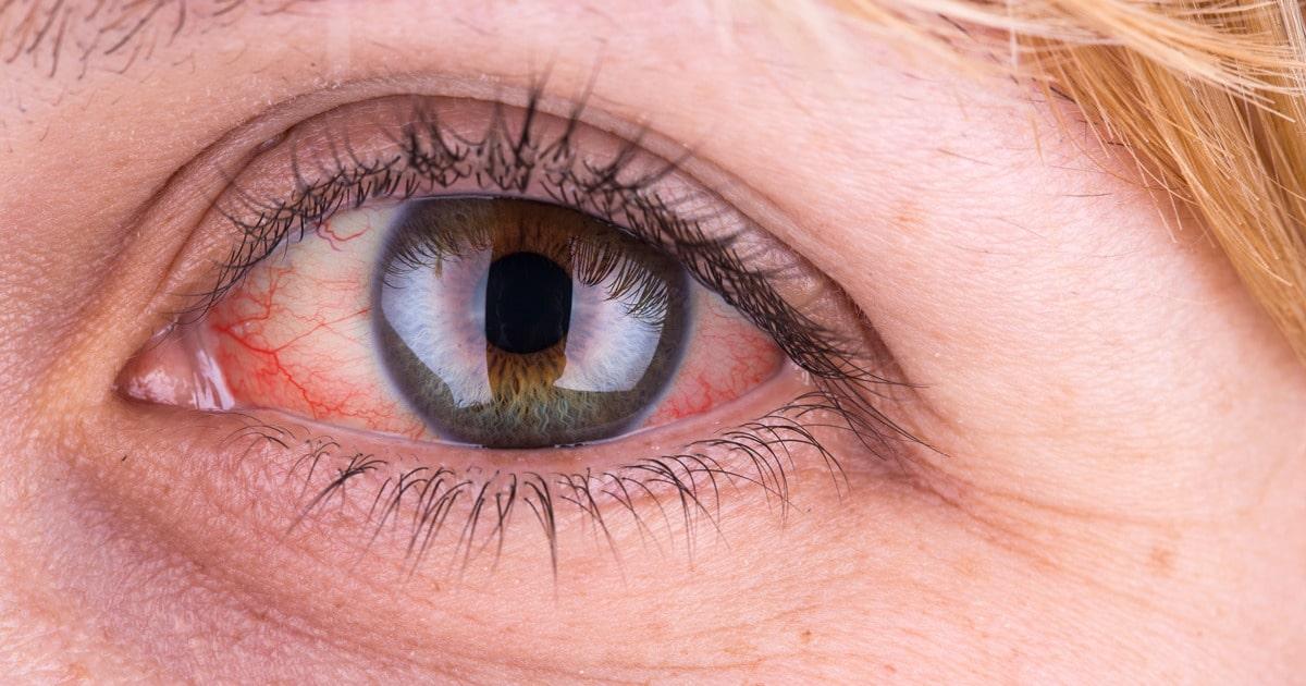 Белки глаз розовые причины