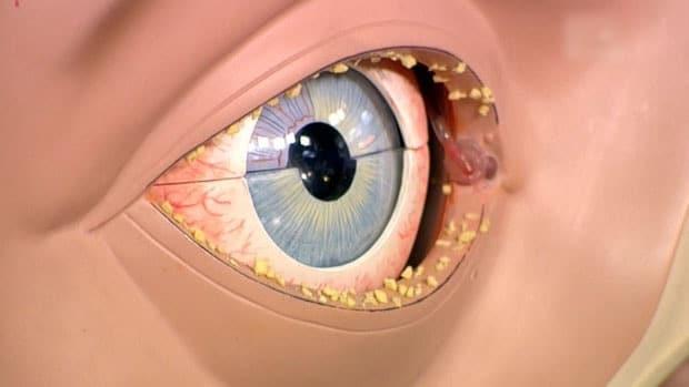 Глаза воспалились и покраснели гноятся лечение
