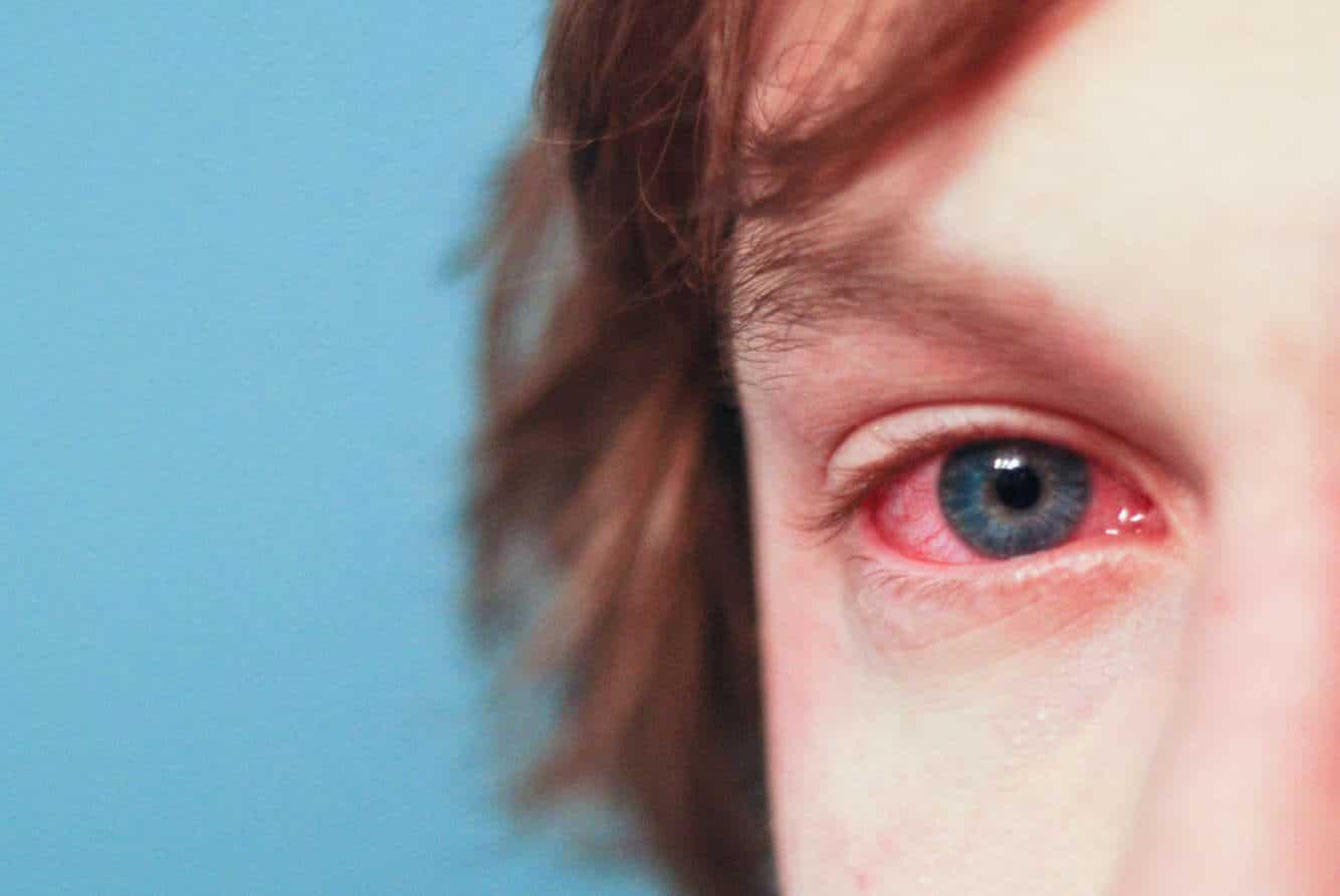 Красные глаза у взрослого