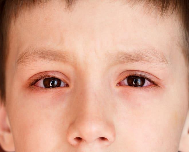Покраснели глаза у ребенка