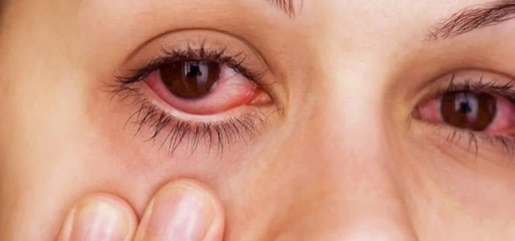 Алергическая краснота в глазах