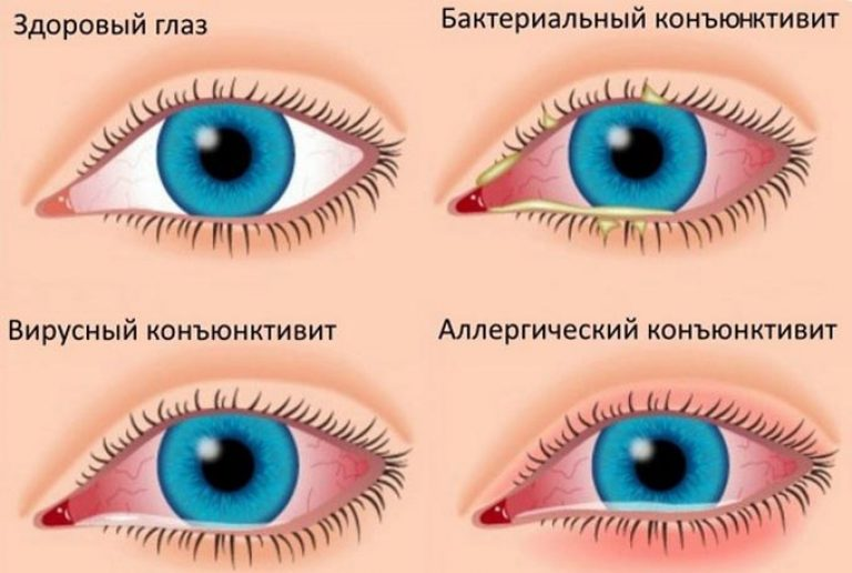 Виды заболевания глаз