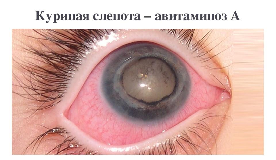 Куринная слепота глаз