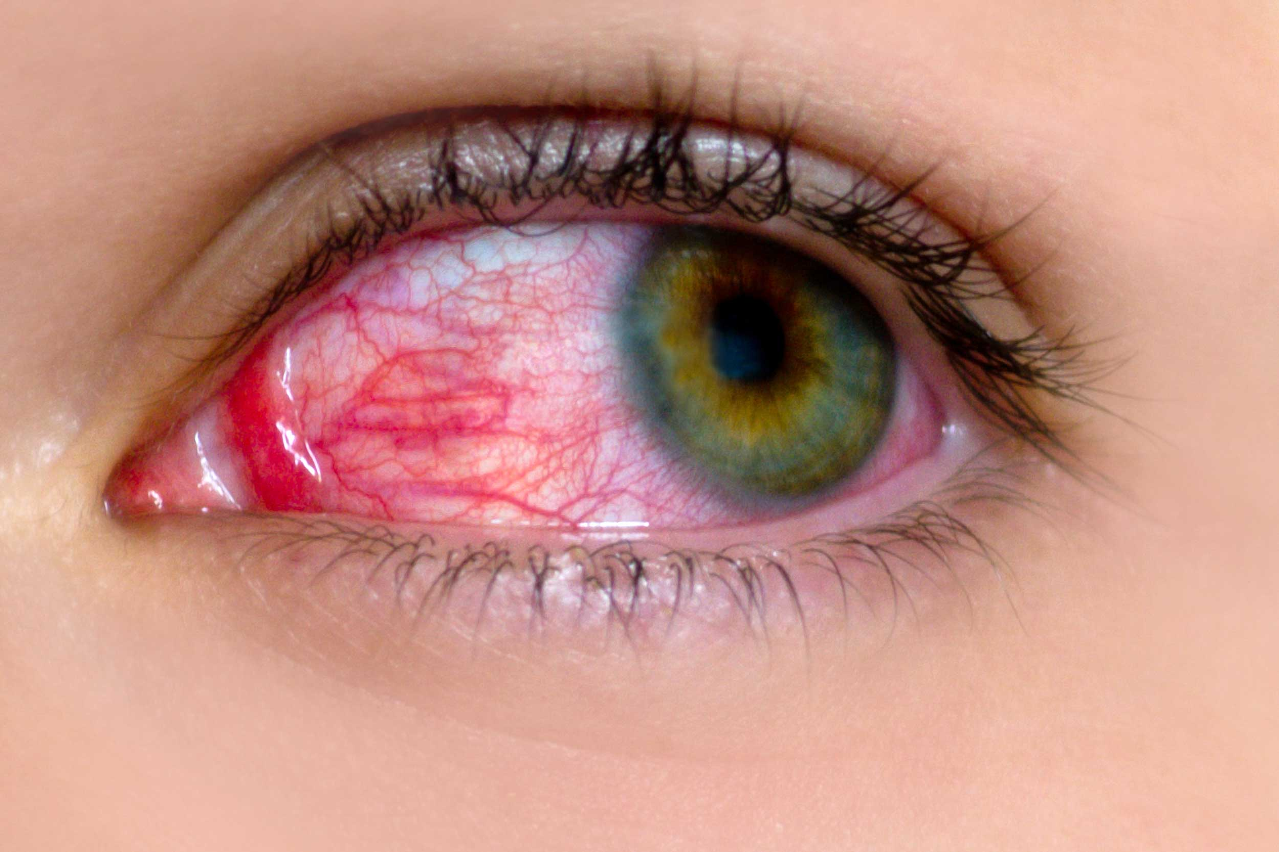Воспаление слизистой оболочки глаза