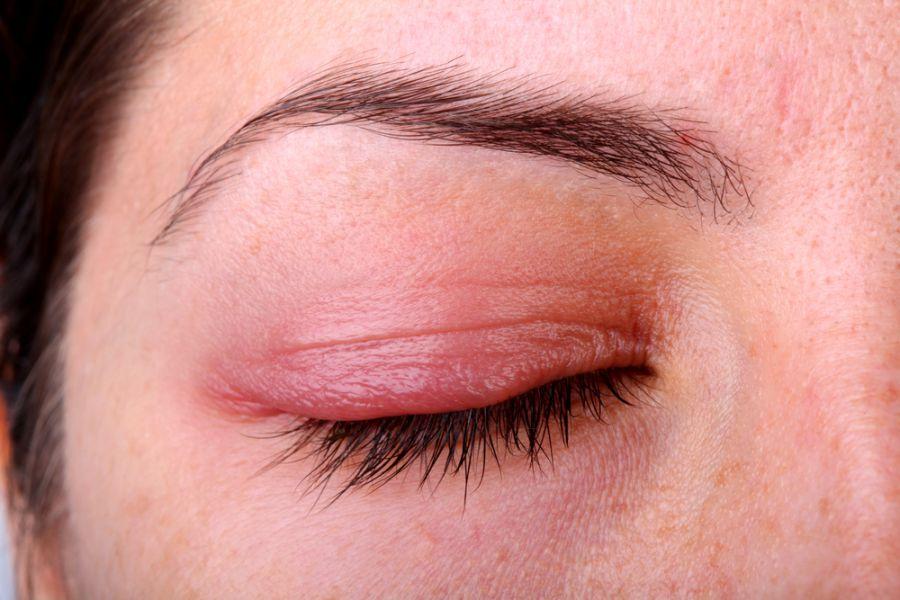 Воспаление кожи вокруг глаз