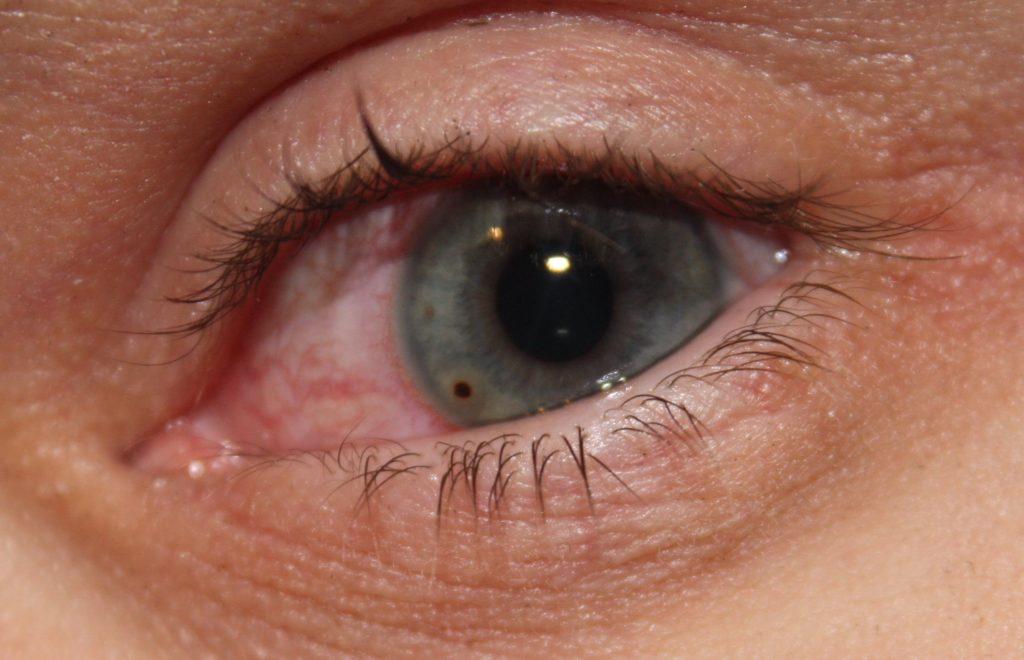 Соринка в глаз попала