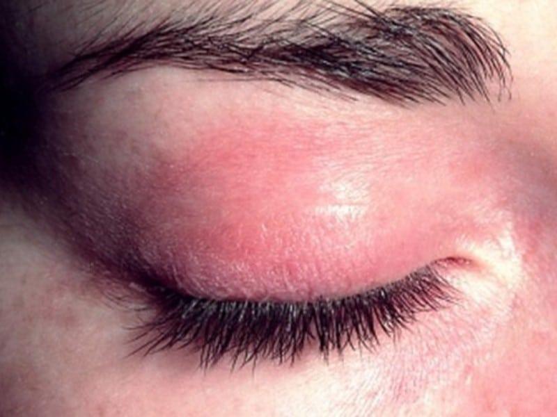 Болит веко глаза