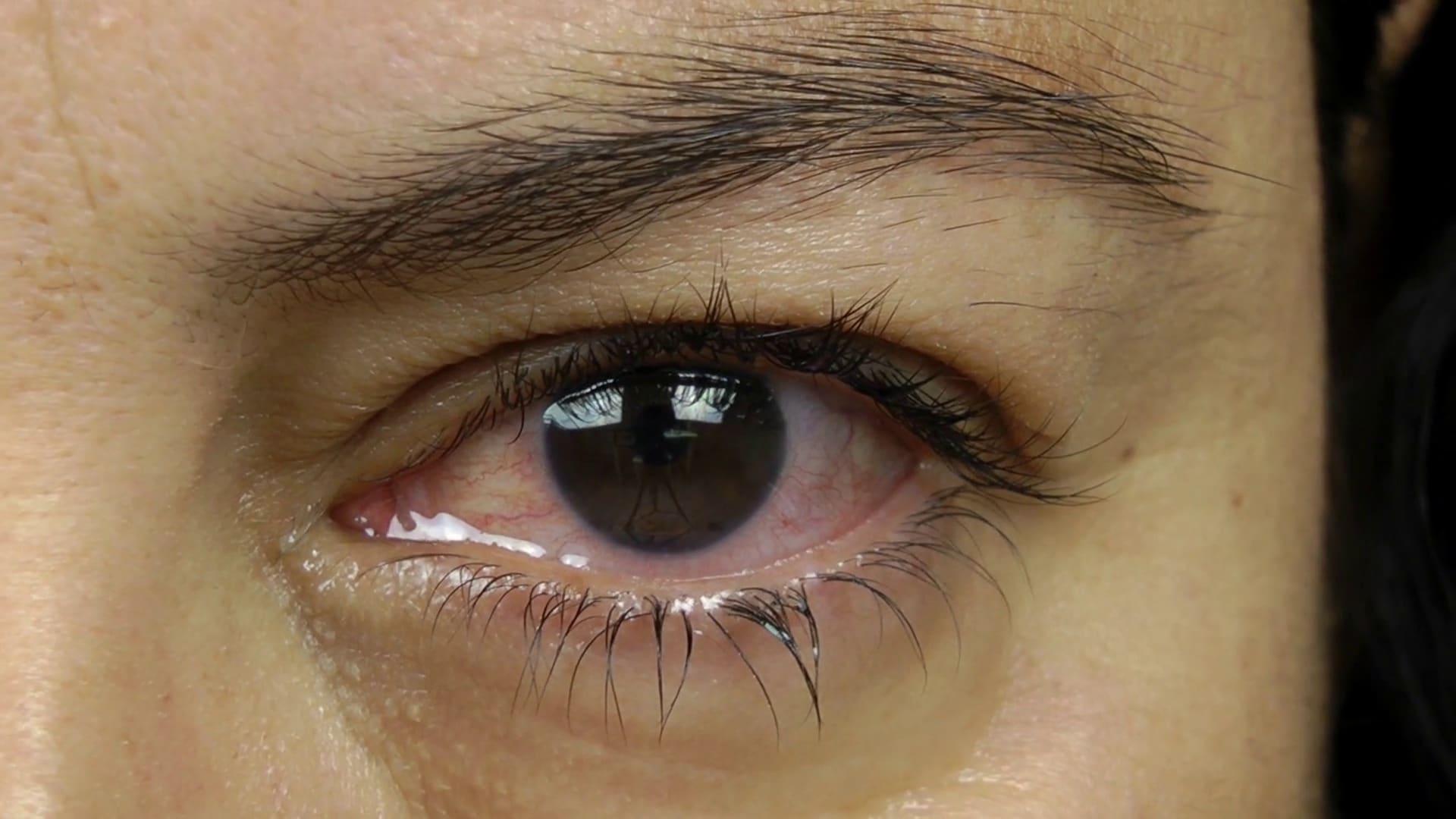 Краснота в глазах