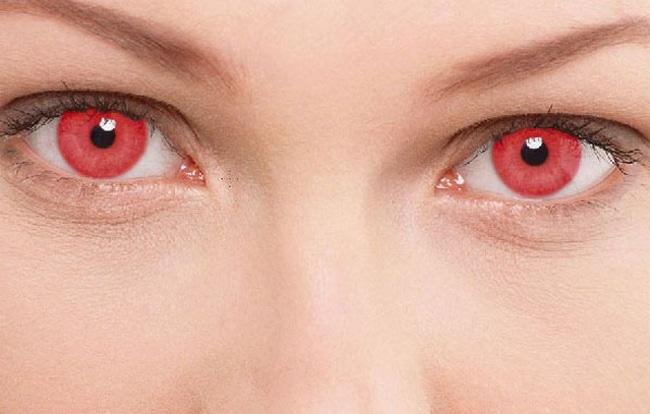 Почему глаза красные