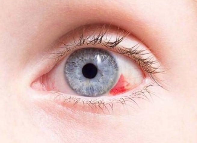 Лопнул сосуд в глазу – что делать? Лопаются сосуды в глазах, кровоизлияние в глаз – причины, лечение