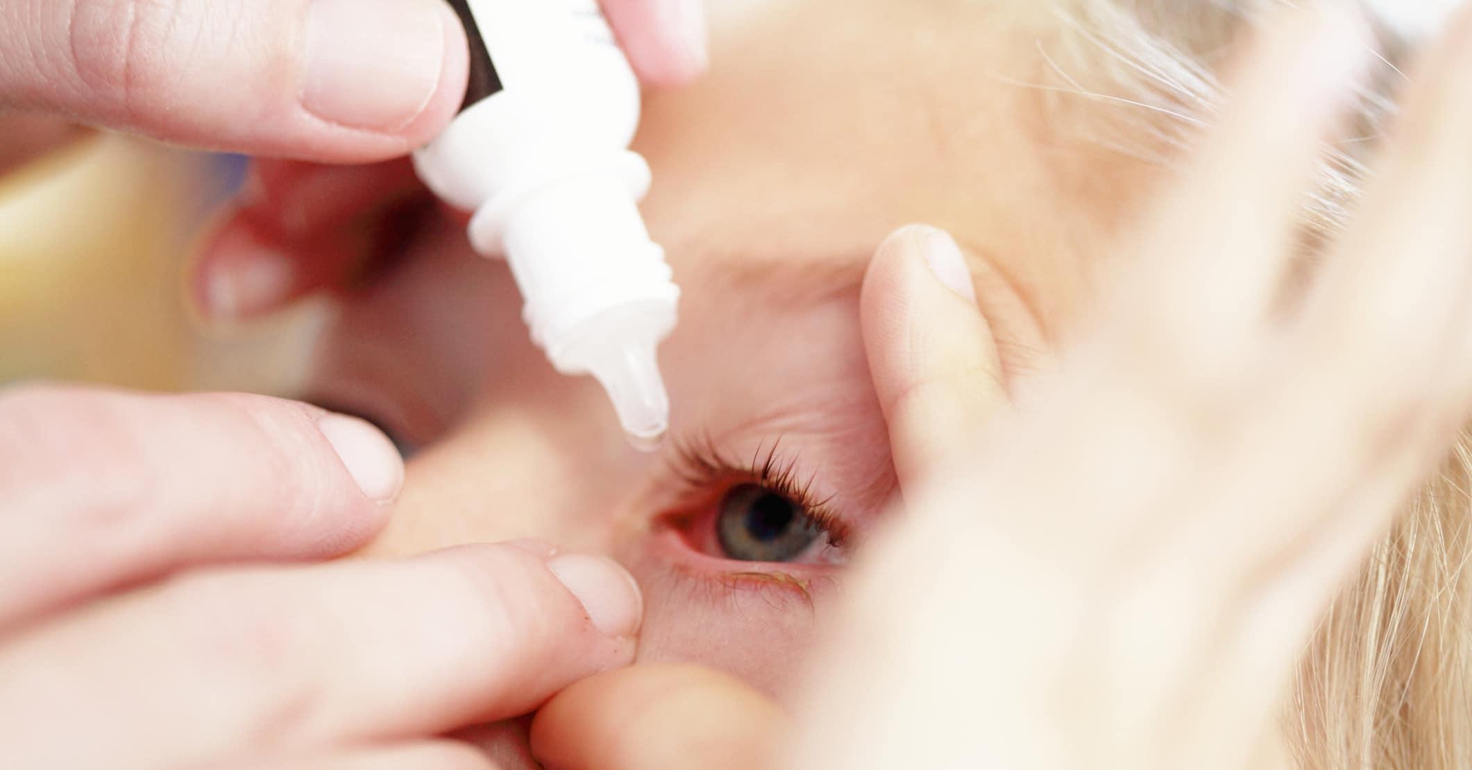 Капаем глазные капли ребенку