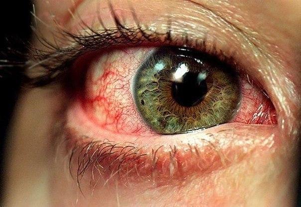 Почему глаза наливаются кровью